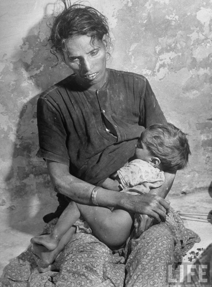 Emaciated Indian woman breast feeds her child despite being on the brink of death herself